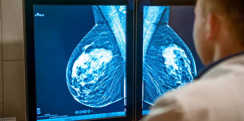Breast Imaging Archives Dr Deanna Attai
